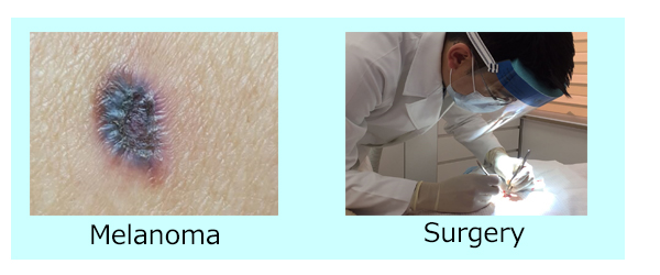 melanoma a serious type of skin Melanoma is the most serious type of skin cancer and the commonest cause of skin cancer death worldwide with early treatment there is a high chance of cure.